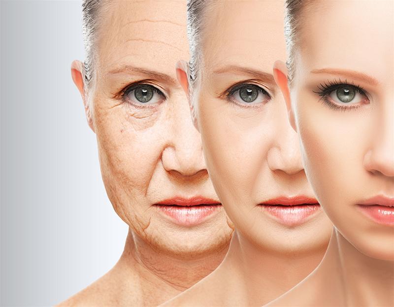 căng da mặt cho người lớn tuổi