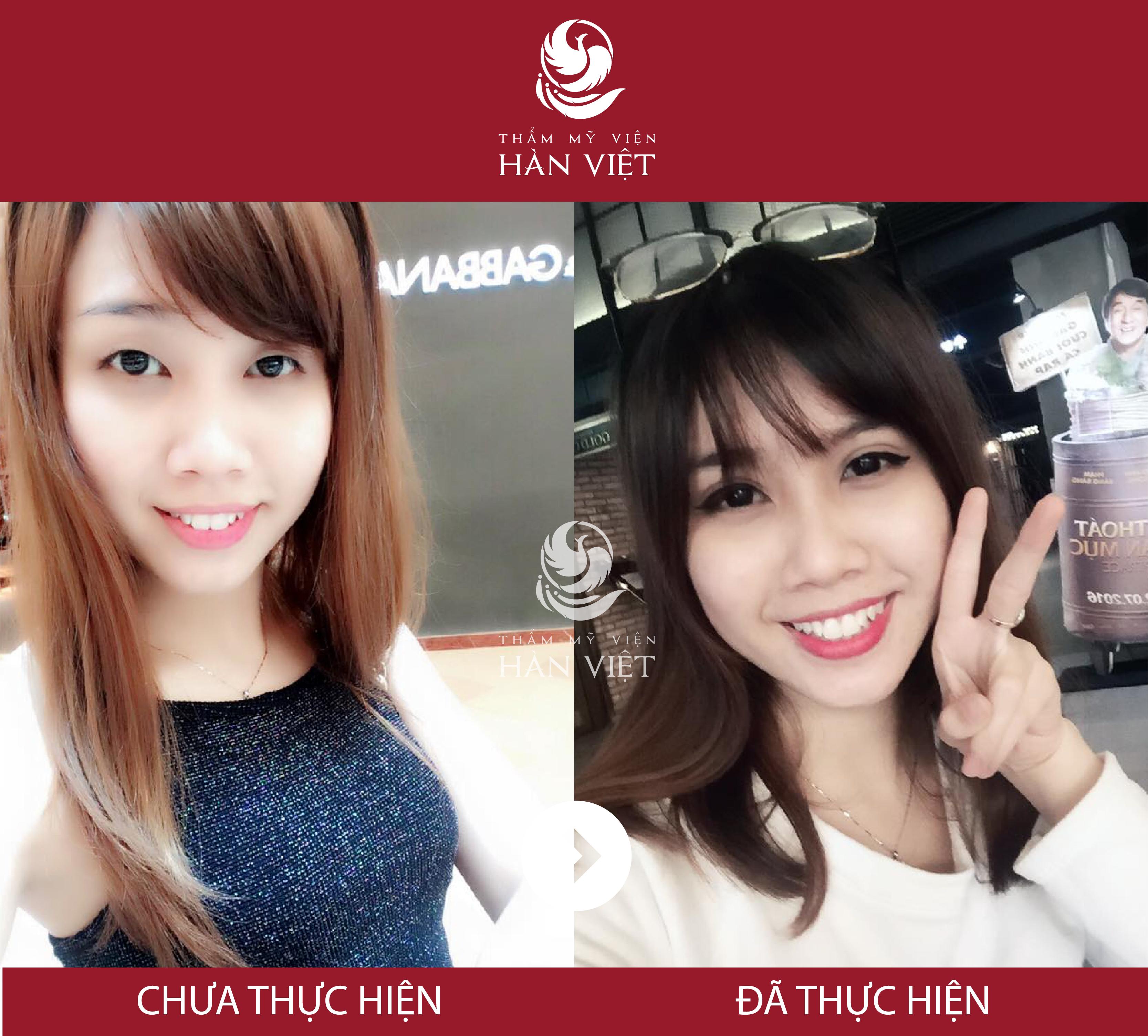 Thẩm mỹ viện Hàn Việt